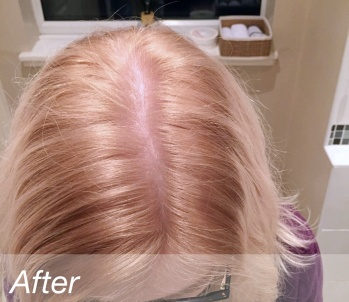 hairdye-after2